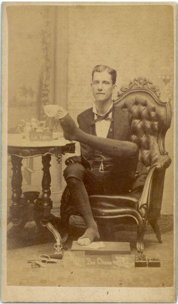 Armless Man in Armchair